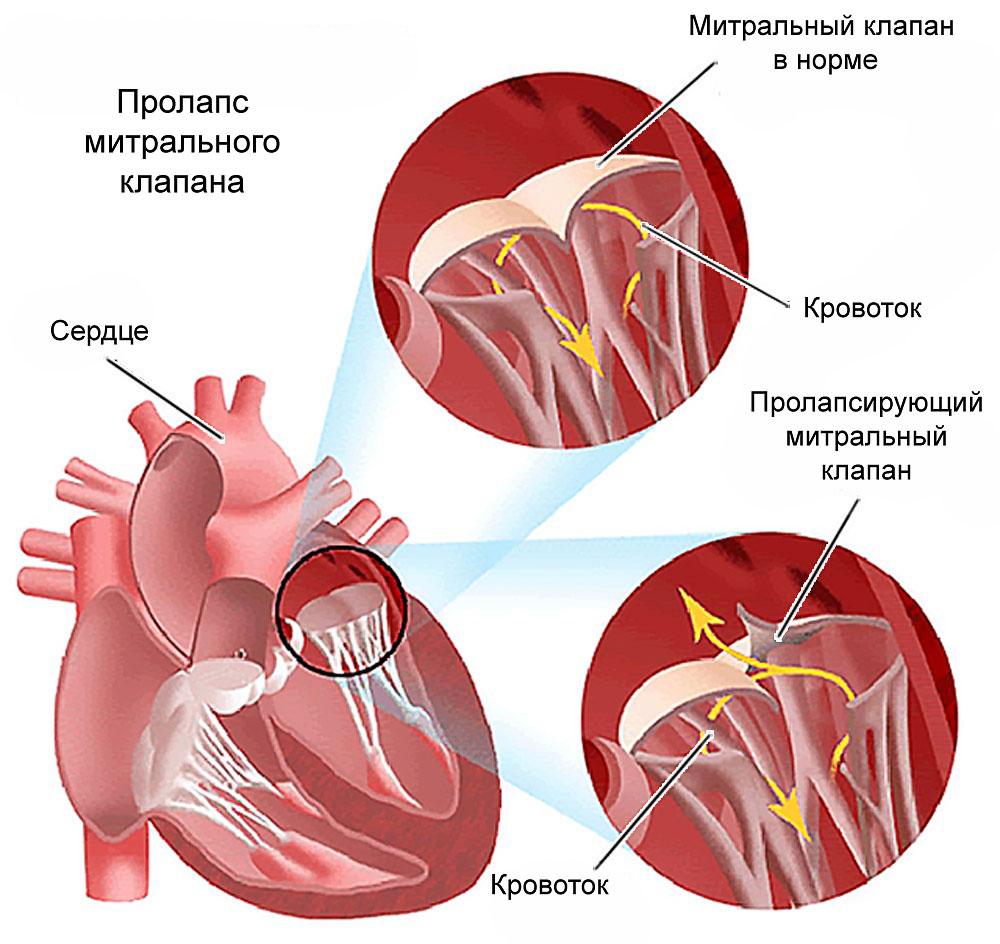 врожденный порок сердца - пролапс митрального клапана