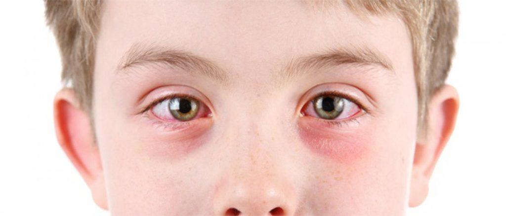 у мальчика красные белки глаз