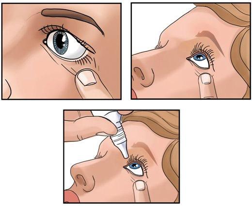 как закапать капли в глаза