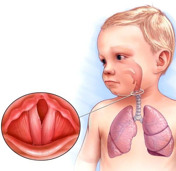 лающий кашель у ребенка - схема возникновения