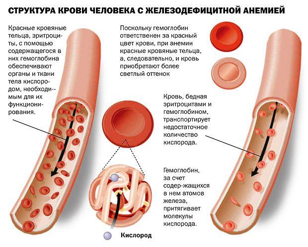 структура крови с анемией