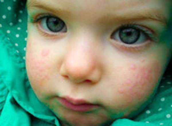 ребенок с проявлениями аллергии на коровий белок