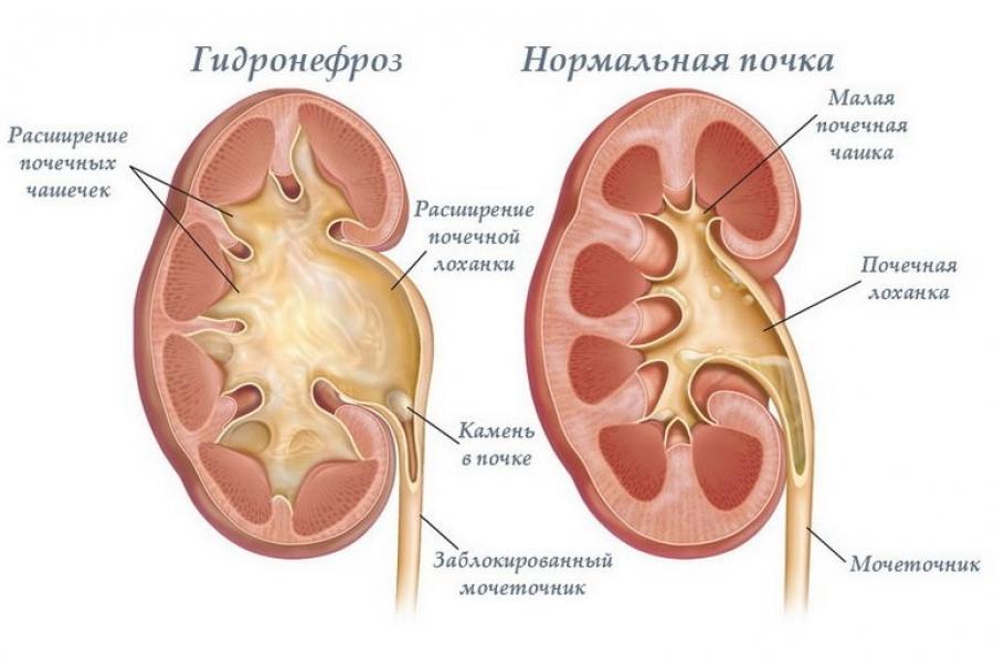 почка в норме и при гидронефрозе