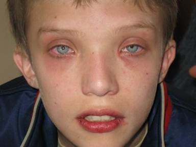 Фарингоконъюнктивальная лихорадка