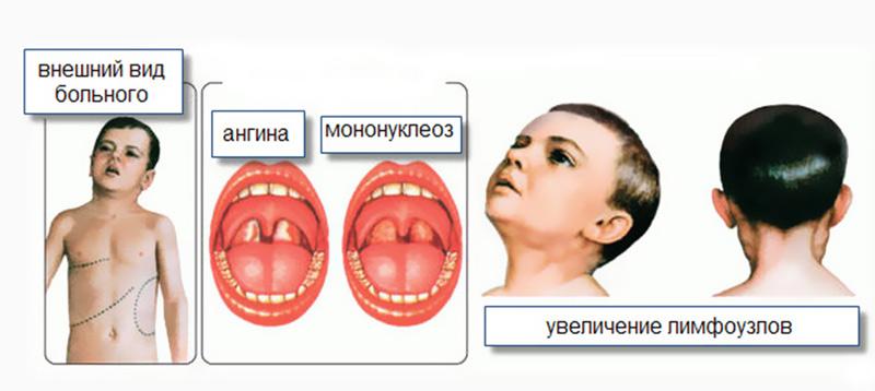 мононуклеоз у детей симптомы и лечение фото
