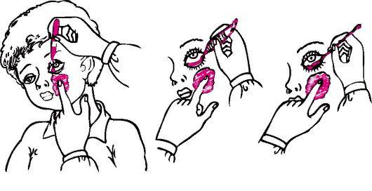 конъюнктивит у детей лечение - как закапывать