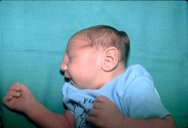 у ребенка деформирован череп