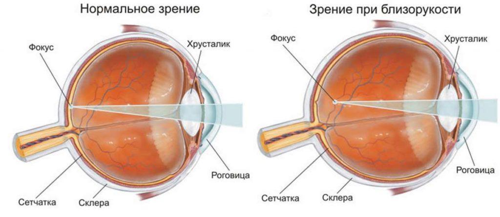 нормальное зрение и при миопии