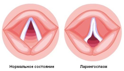 нормальное состояние связок и при ларингоспазме