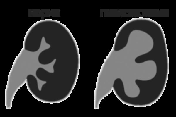 норм и пиелоэкстазии