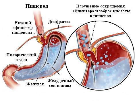 как происходит рефлюкс-эзофагит