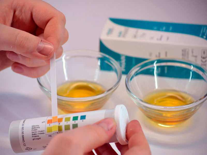 Ацетон у ребенка лечение в домашних условиях 19