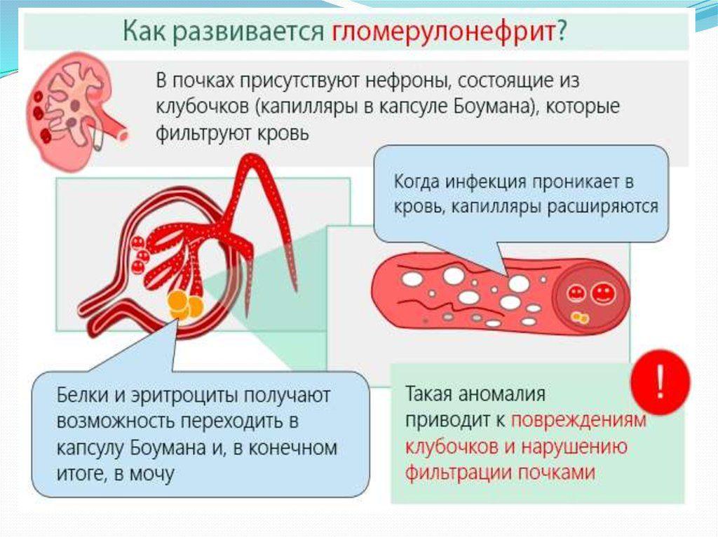 схема развития гломерулонефрита