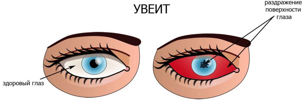 здоровый глаз и глаз с увеитом