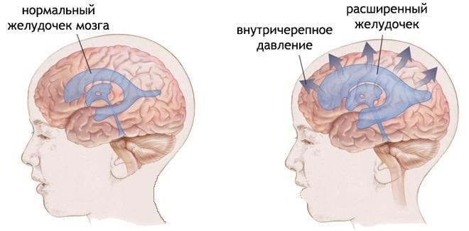 симптомы ВЧД