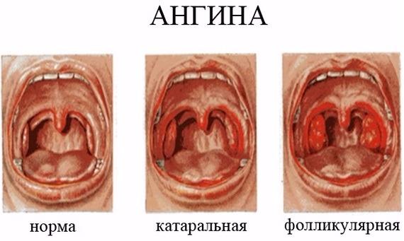 Мастоцитомы у детей фото