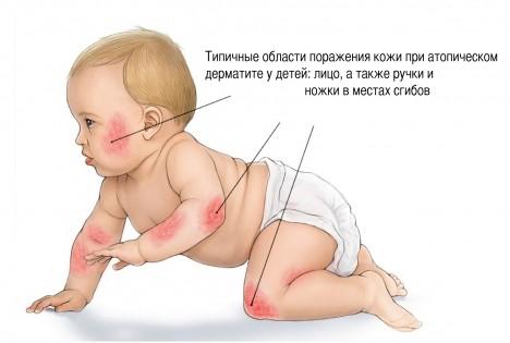 атопический дерматит у детей - локализация очагов