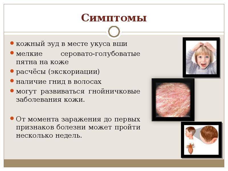 симптомы вшей у детей