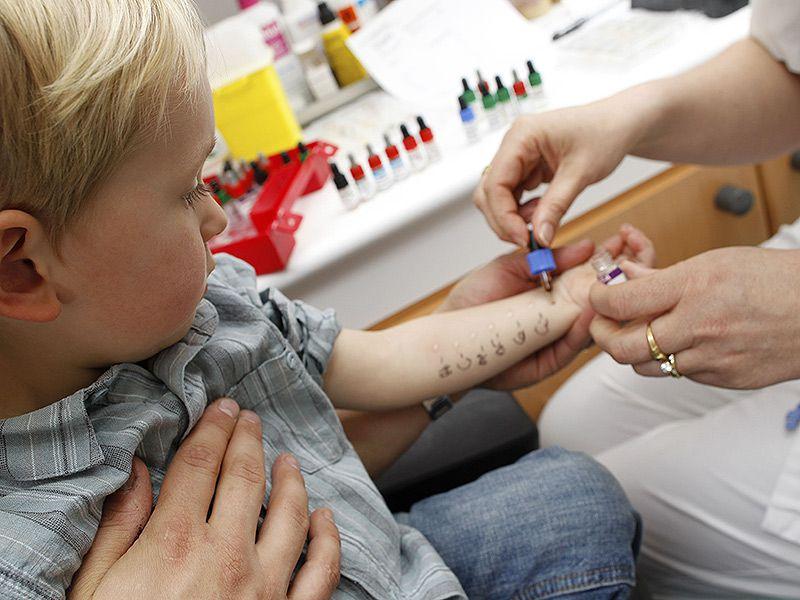 ребенку проводят тест на аллергию