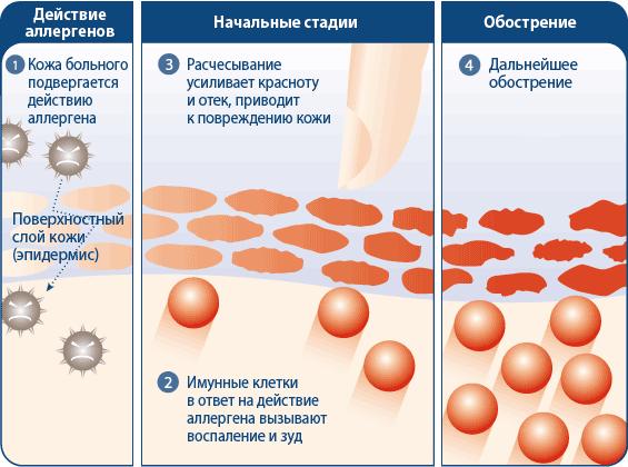 схема развития дерматита