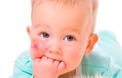 у ребенка на щечке диатез
