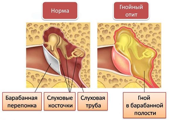 отит двухсторонний - схема заболевания