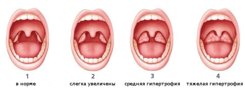 степени развития миндалин