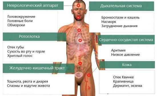 пищевая аллергия у детей - основные типы реакции