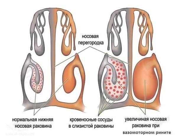 носоглотка в норме и при вазомоторном рините