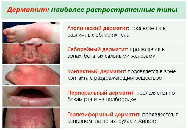 основные виды дерматитов