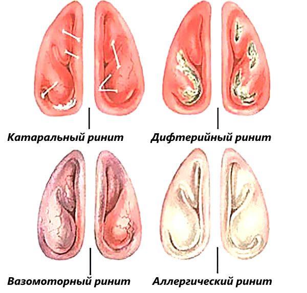 ринит задний - формы заболевания