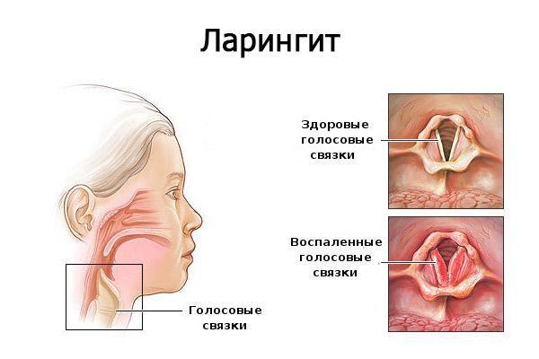 ларингит у детей симптомы и лечение на схеме