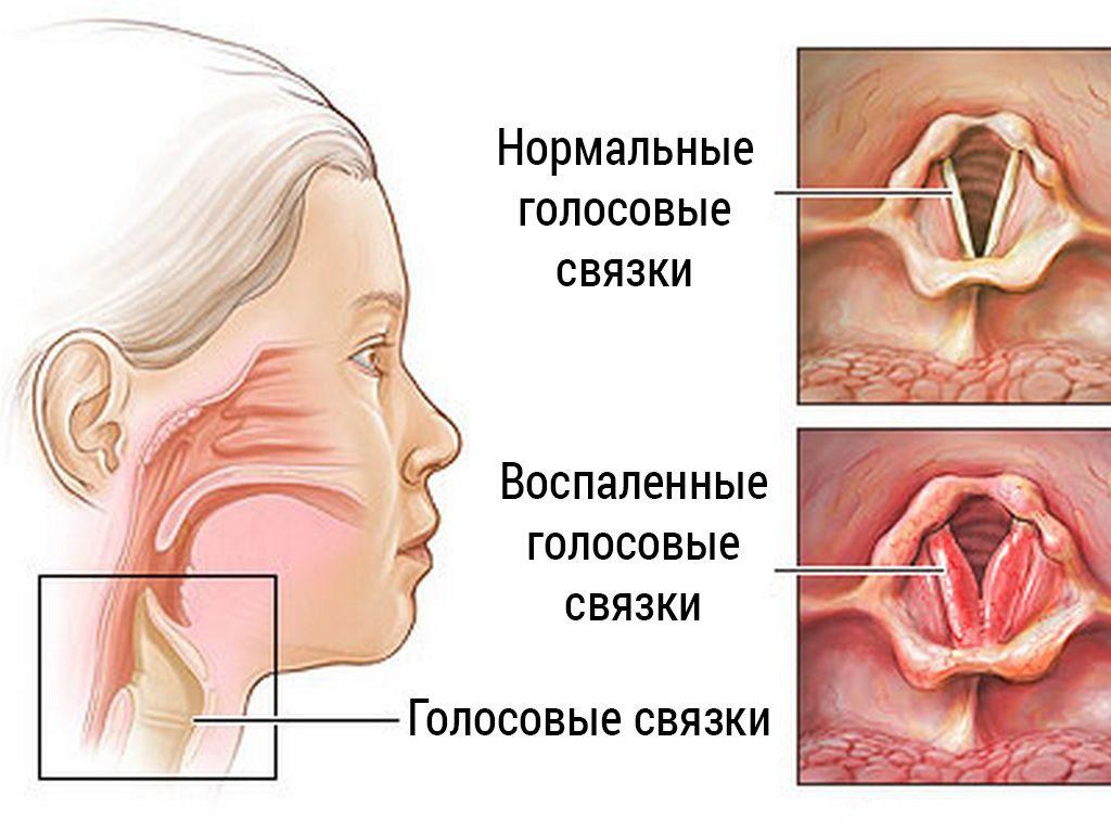 связки в норме и при ларингите