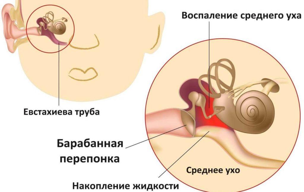 почему болит ухо у ребенка - схема