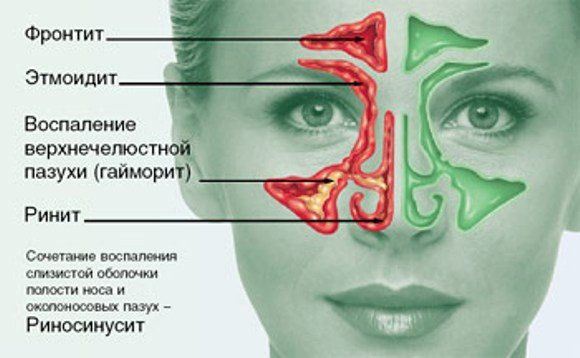виды заболеваний носоглотки