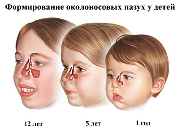 как формируются носовые пазухи