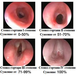 степени стеноза гортани