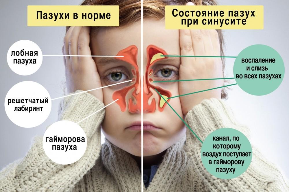 носовые пазухи в норме и при синусите