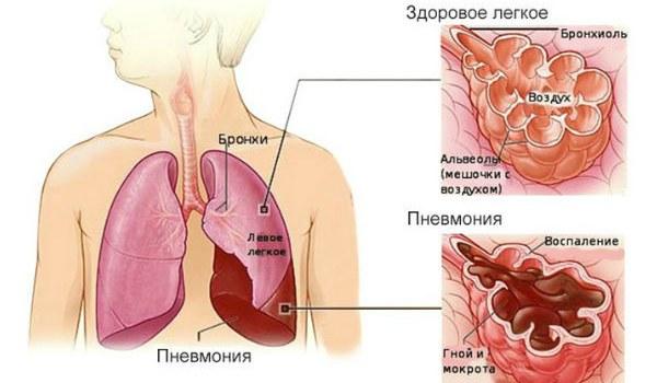 как развивается пневмония
