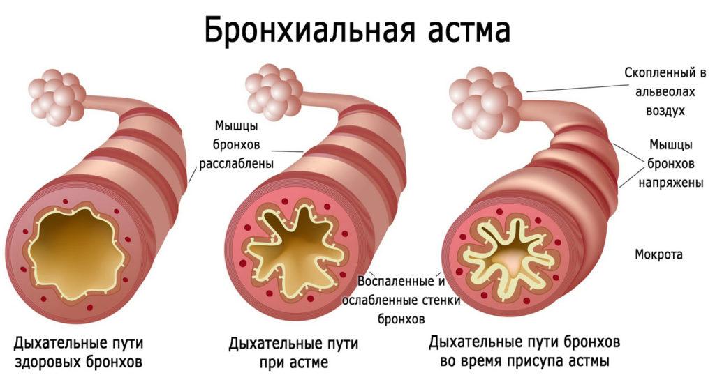 вид бронхов здоровых и при бронхиальной астме