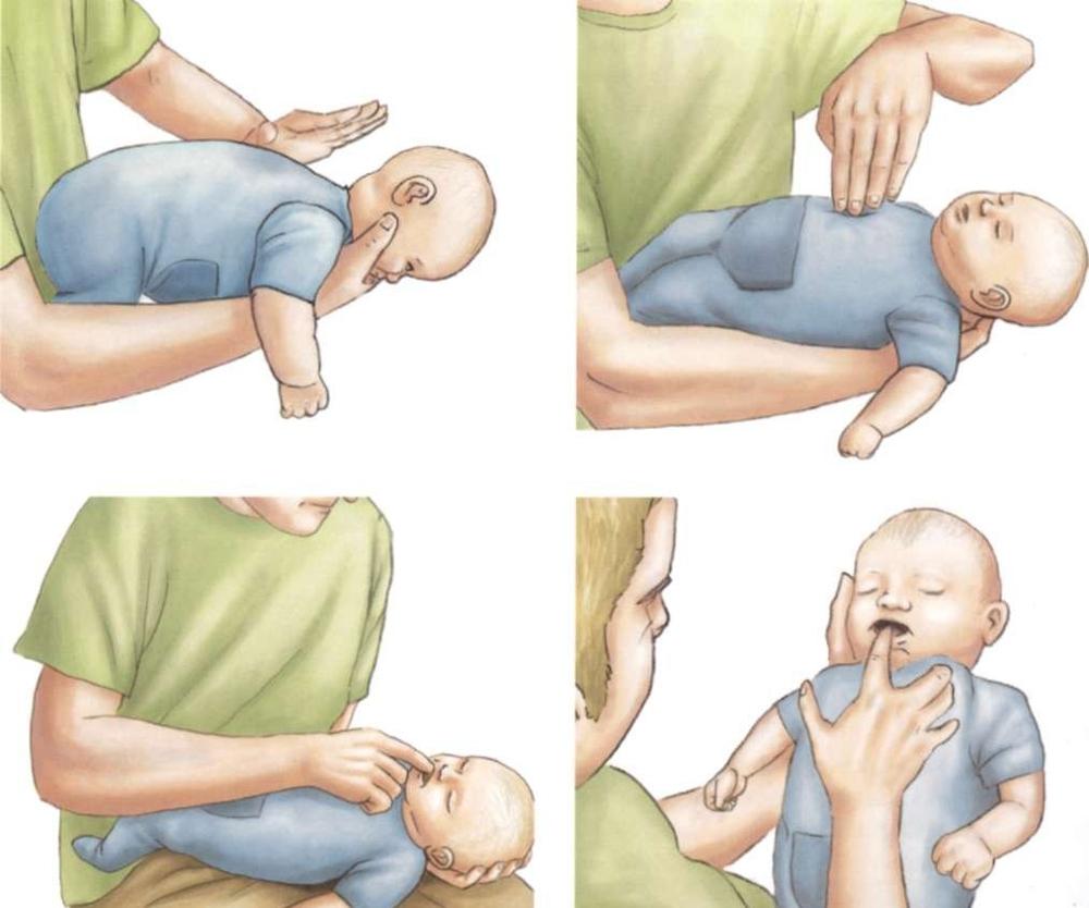 оказание помощи, если ребенок подавился