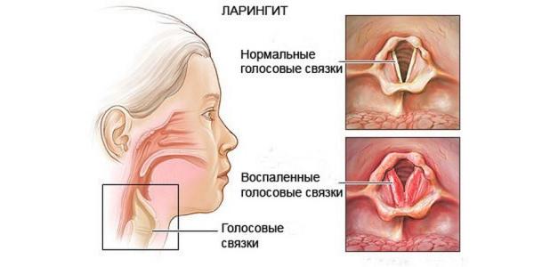 ларингит и здоровые связки