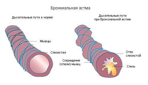 бронхи в норме и при астме