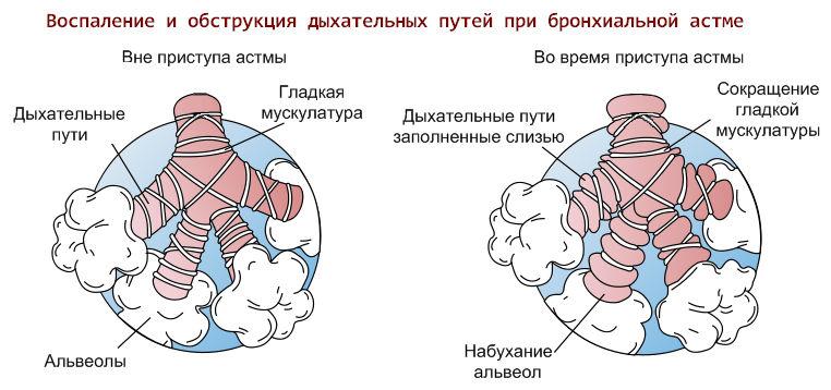 что происходит в легких при астме