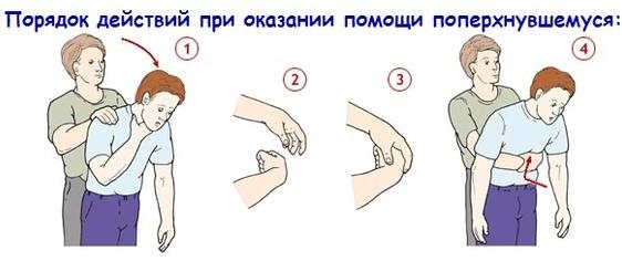 как помочь поперхнувшемуся