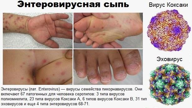 энтеровирусная сыпь