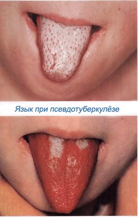 налет на языке при псевдотуберкулезе