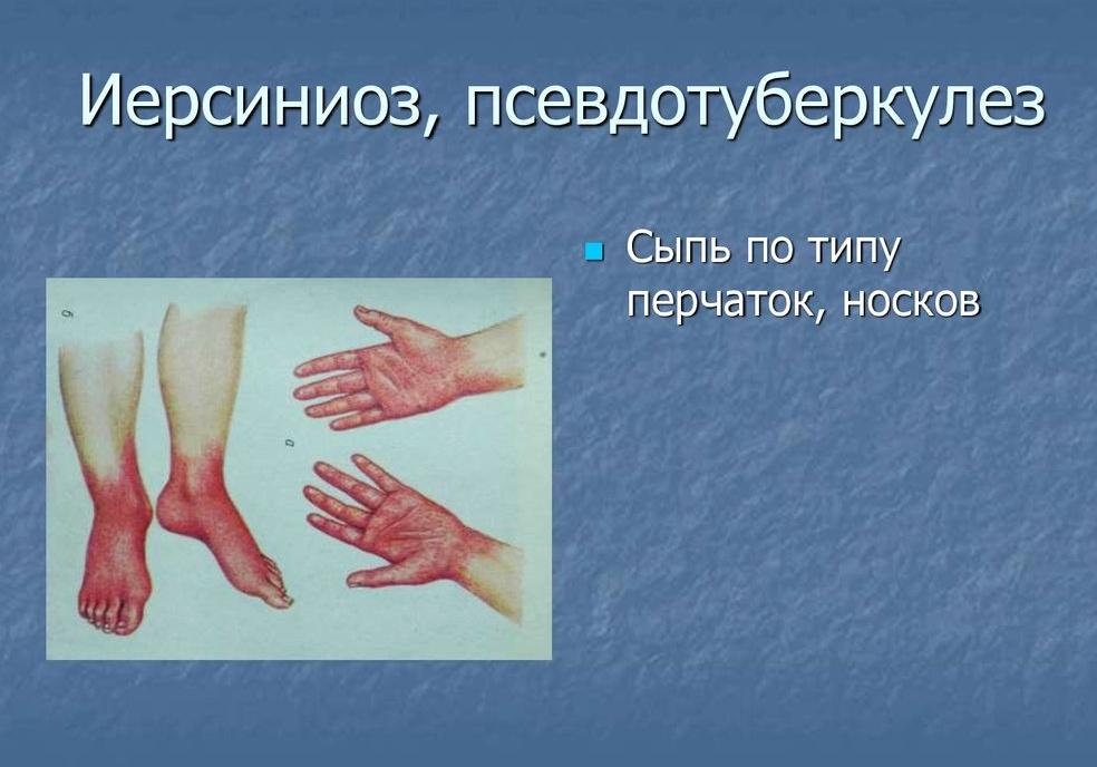 признаки псевдотуберкулеза на коже