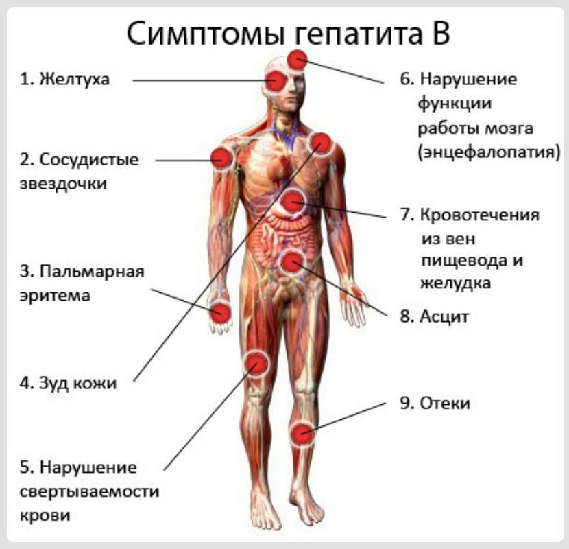 признаки гепатита В