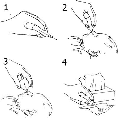 как очистить нос младенцу от слизи